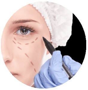 Blefaroplastika (operacija kapaka) - priprema za operaciju
