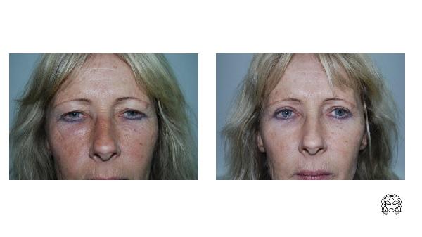 Bleafroplastika (operacija kapaka) - prije i poslije operacije