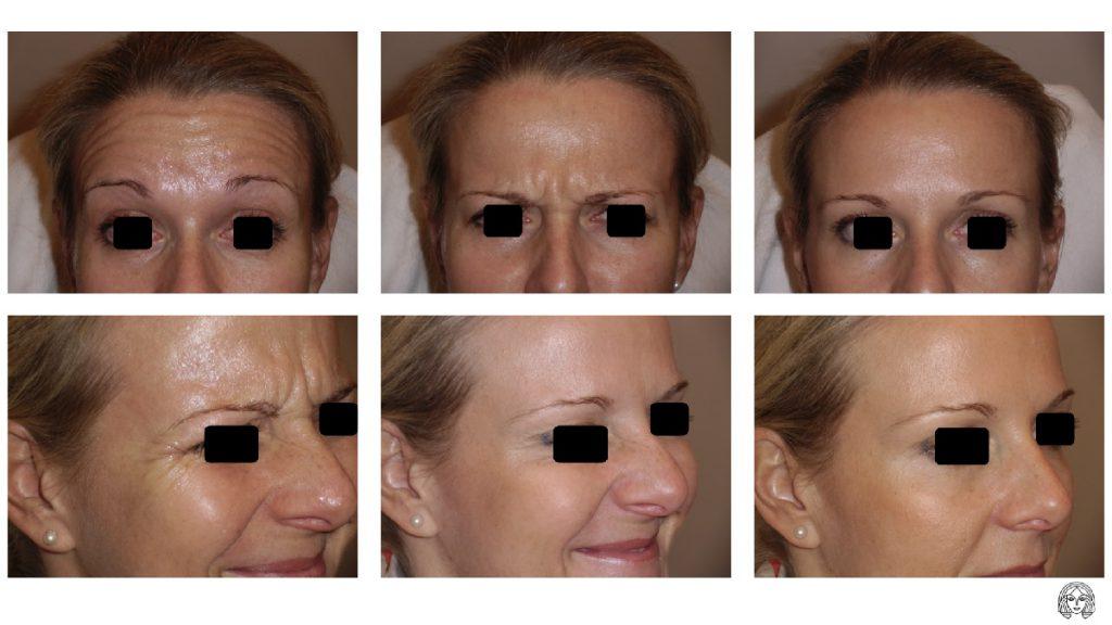 Botox rezultati