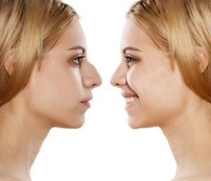 Operacija nosa - prije i nakon rinoplastike