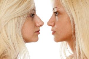 Rinoplastika - prije i nakon operacije - primjer