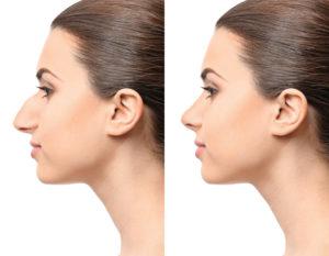 Operacija nosa - primjer - prije i nakon rinoplastike
