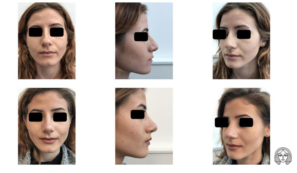 Rinoplastika - primjer - prije i nakon operacije nosa